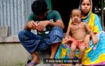 "Бенджамин Баттон: в Бангладеш живёт 4-летний ""старик"""