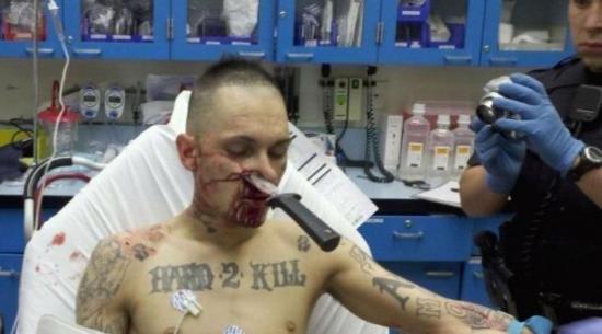 труп от ножевого ранения фото